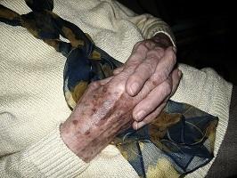 altersflecken entfernen