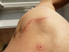Wie kann man Aknenarben entfernen?