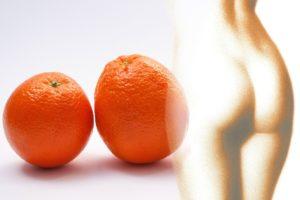 Cellulite-Alarm! 6 Tipps, die wirklich gegen Orangenhaut helfen