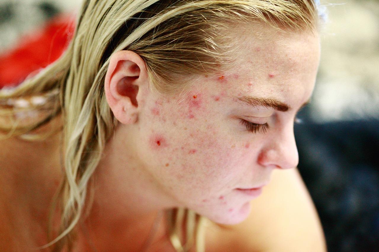 Welche Hausmittel helfen bei Akne?