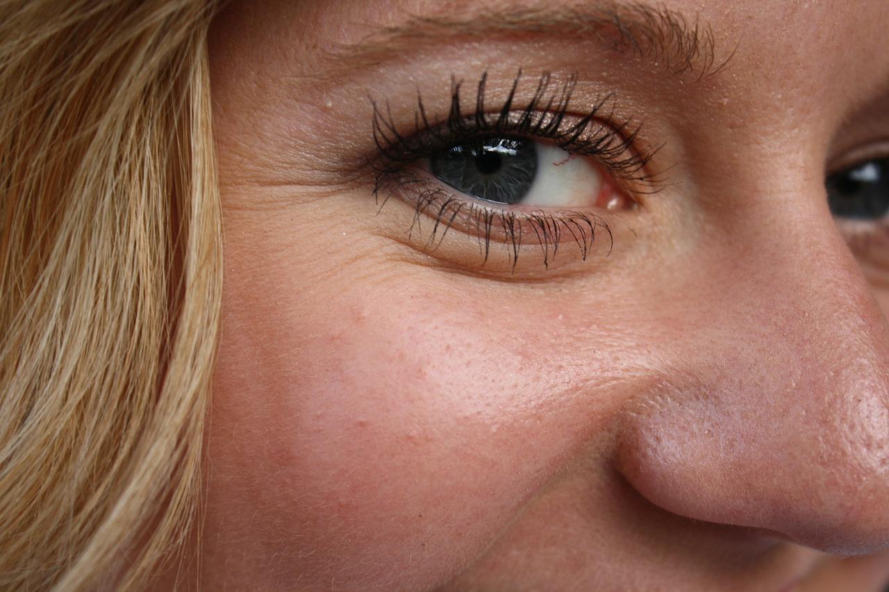 Eingriff: Faltenunterspritzung mit Hyaluronsäure