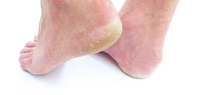 Entstehung von Hautpilz oder Fußpilz