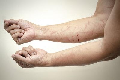 Neurodermitis – erkennen und behandeln